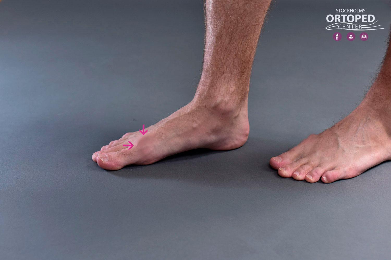 artros stortå skor