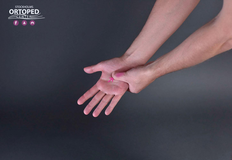 Karpaltunnel Syndrom ont i handen